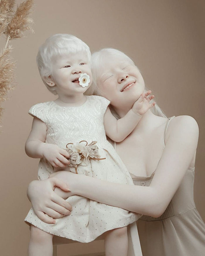 Az első lány születésekor az édesanya, Aiman Sarkitov és az orvosok is nagyon meglepődtek. Az orvosok eleinte kétkedtek, hogy esetleg más apától származik-e.