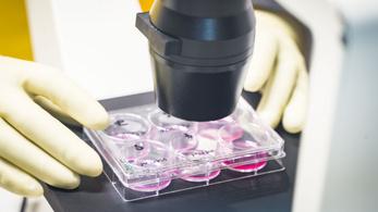Nagyban megegyezik a kínai koronavírus és a SARS genetikai kódja