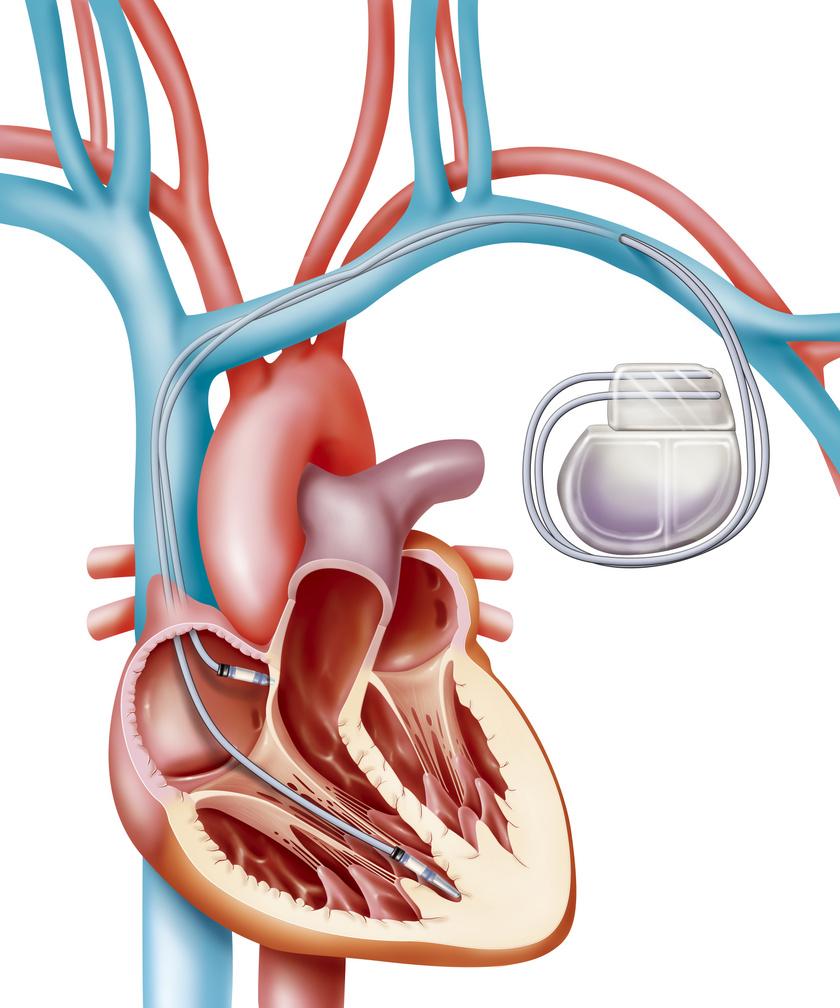 Így néz ki a pacemaker.