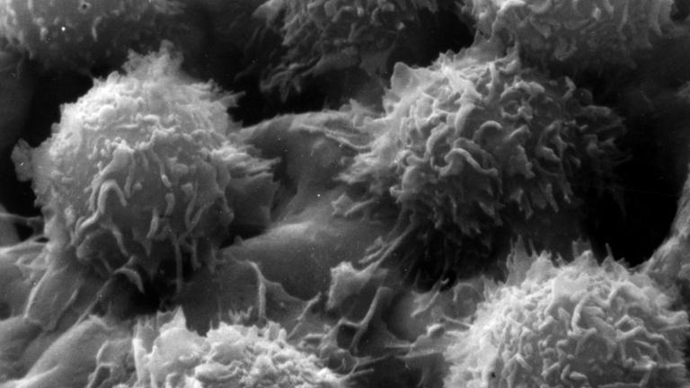 Elkészült a rákbetegségek térképe, alapjaiban változhat meg a rákkezelés