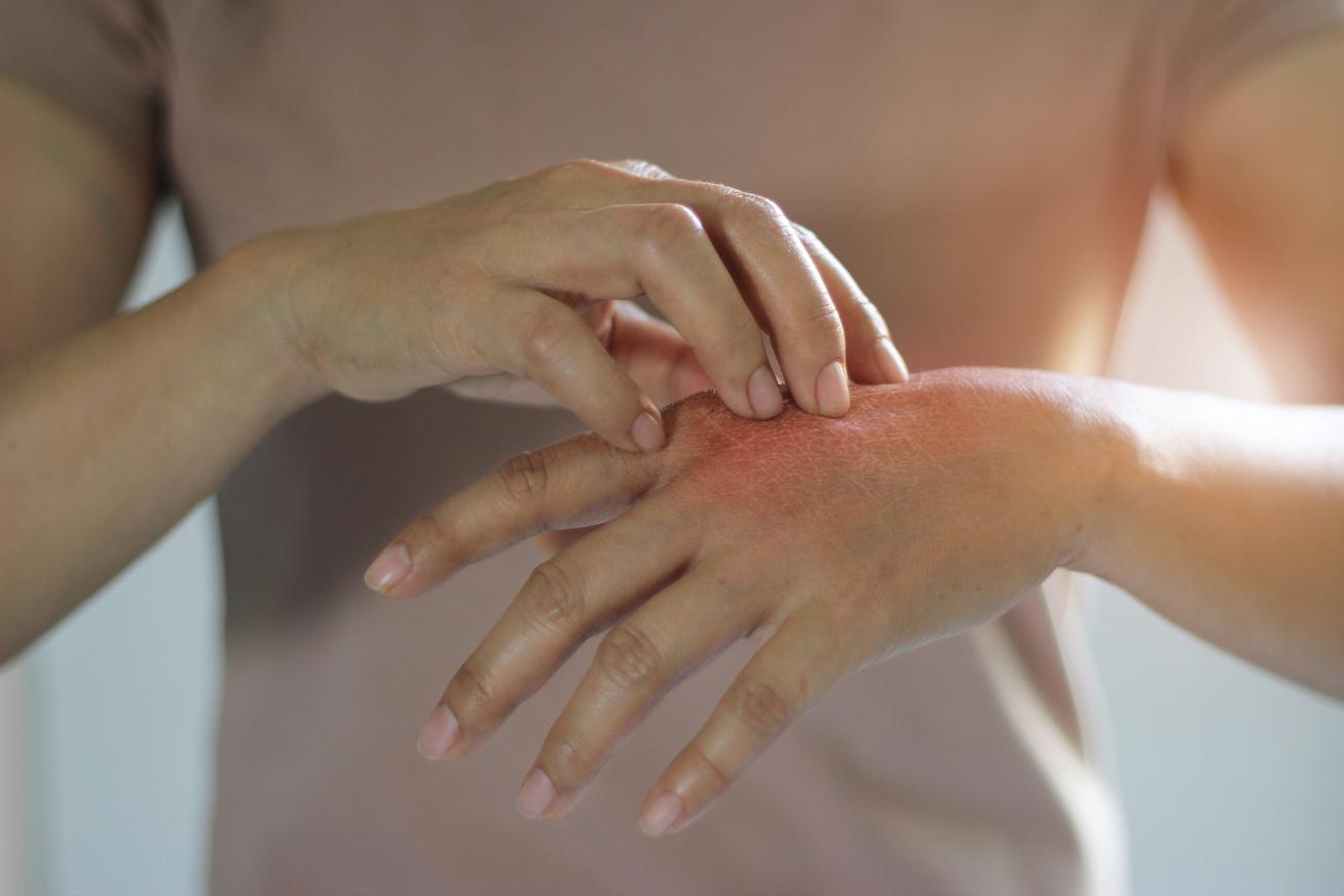 piros folt a kéz hüvelykujján)
