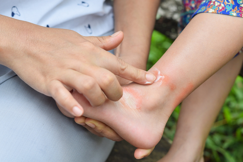 folt a kezén piros peremmel mit kell tennie)