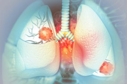 tüdőrák egészség nyitó
