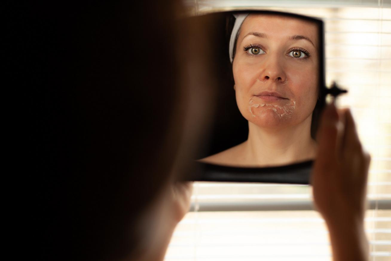 bőrszárazság nyitó