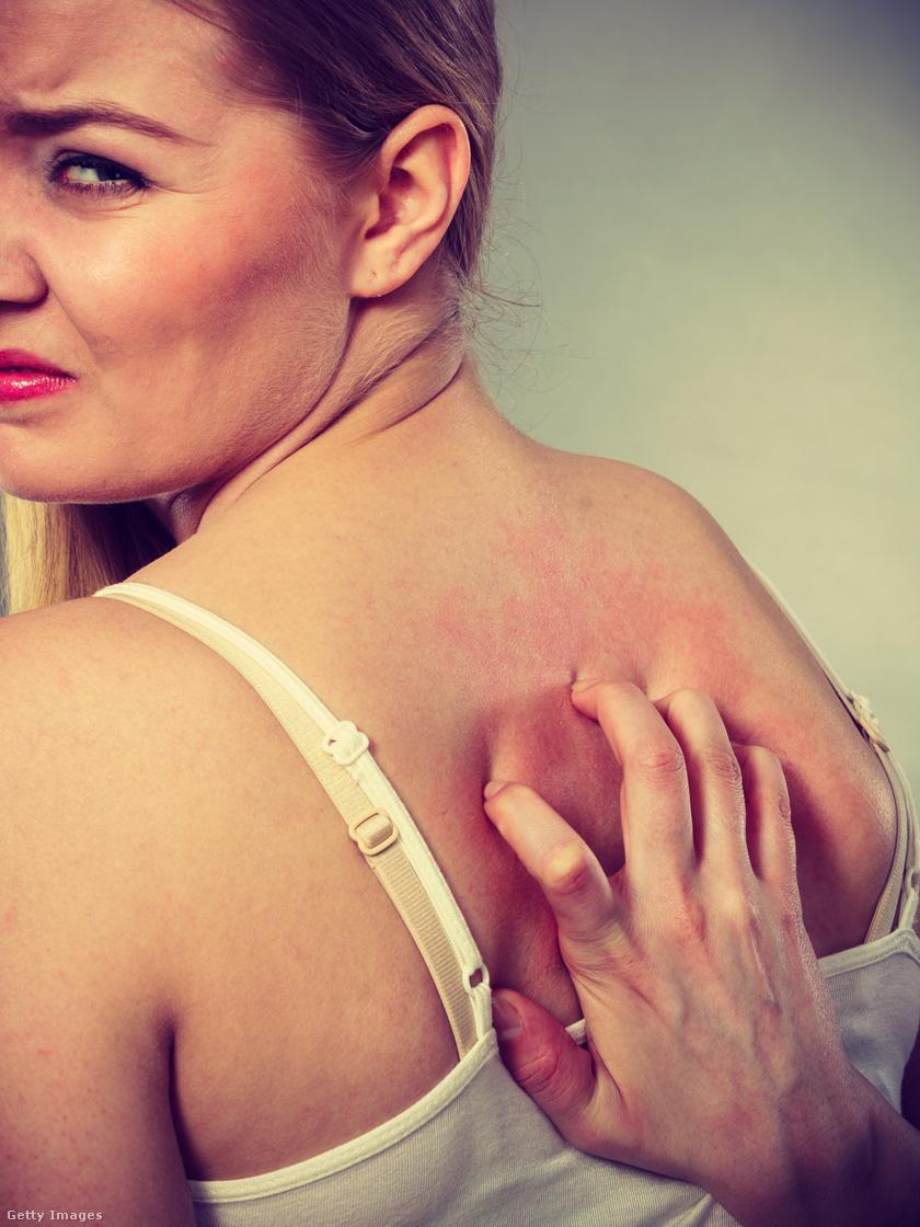 bőrszárazság 1 egészség