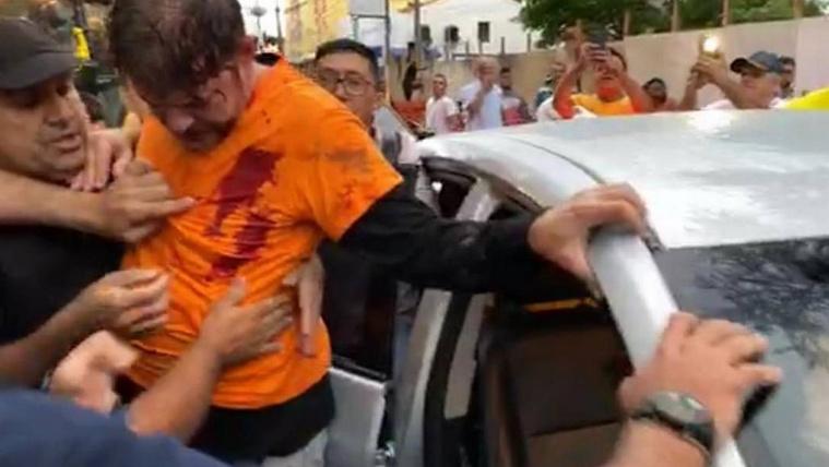 Tüntető rendőrök lőttek rá egy brazil politikusra