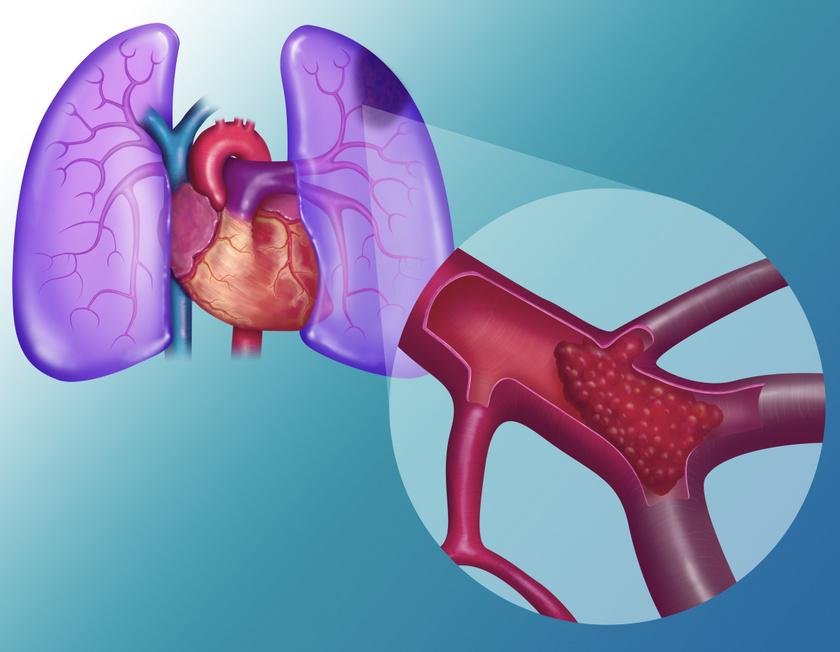 Így néz ki a tüdőembólia.