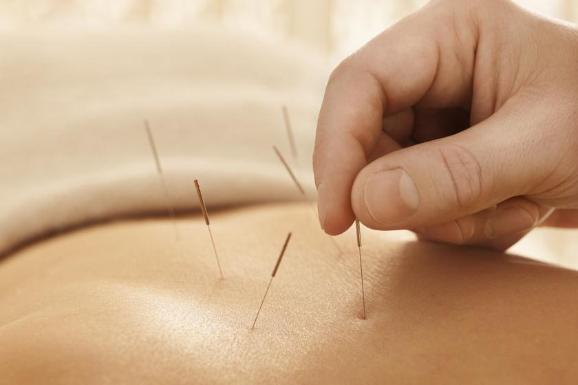 Hogy segíthet az akupunktúra a fogyásban? A szakértő válaszol
