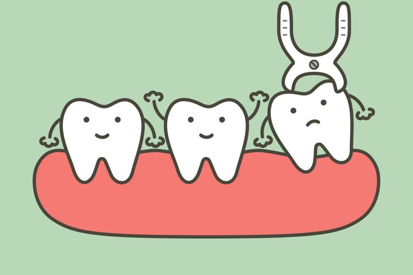 láthatatlan fogszabályozás bölcsességfog eltávolítása