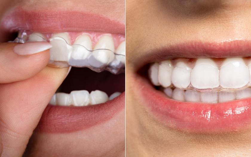 láthatatlan fogszabályozás egyben