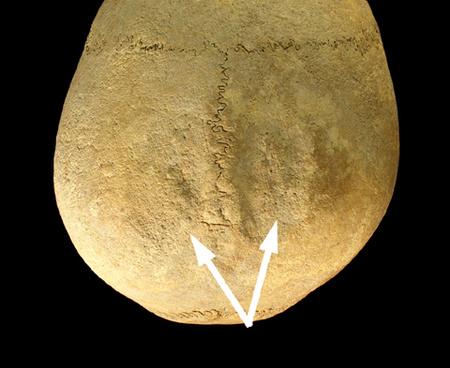 Koponyalékelés nyomai az egyik koponyatetőn