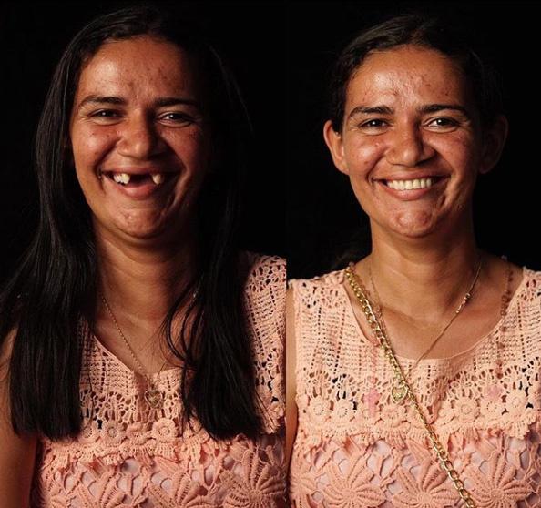 A 28 éves nő arca teljesen megváltozott az új fogsortól. Az orvos hozzátette, a szép mosoly az emberek társadalmi beilleszkedését is nagyban elősegíti.