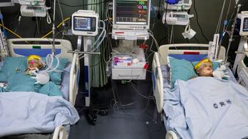 Sürgősségi műtétet kellett végrehajtani a szétválasztott bangladesi ikrek egyikén
