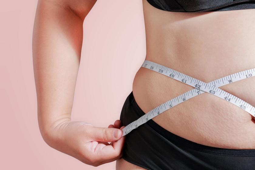 Tudod, mennyi zsírsejted van? 3 érdekes infó, amit még biztos nem hallottál a testedről