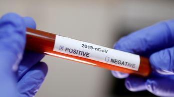 45 perc alatt mutatja ki a fertőzést egy új amerikai gyorsteszt