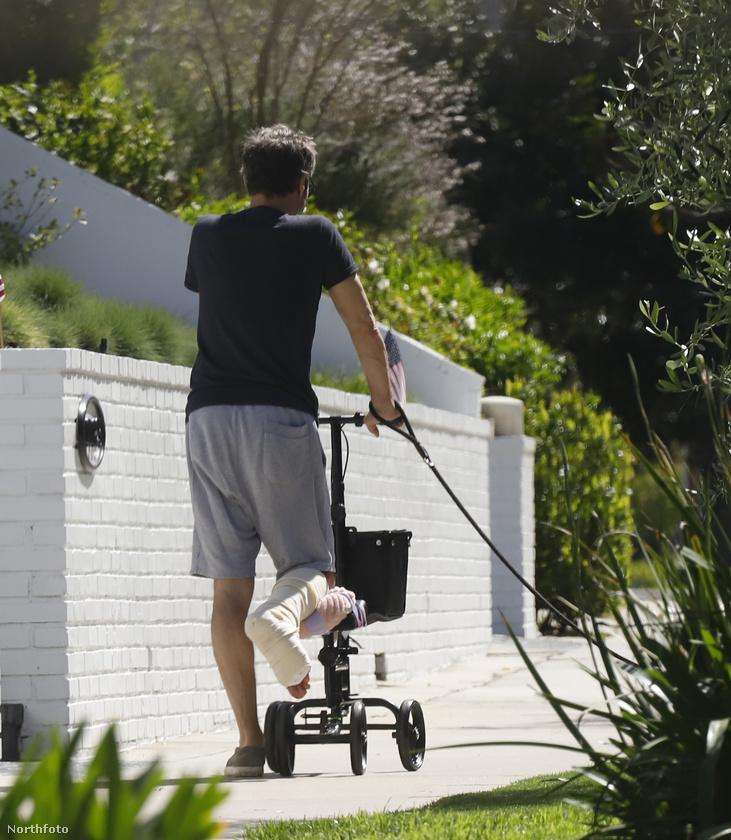 Eltörte a lábát, be van gipszelve, ráadásul karantén van, de ő hétfőn mégis ment egy kört Los Angelesben a kutyájával.