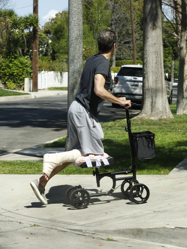 Hát most már tudjuk, hogyan lehet törött lábbal rollerezni