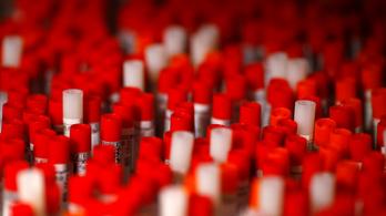 Átlépte az egymilliót a koronavírussal fertőzöttek száma a világon