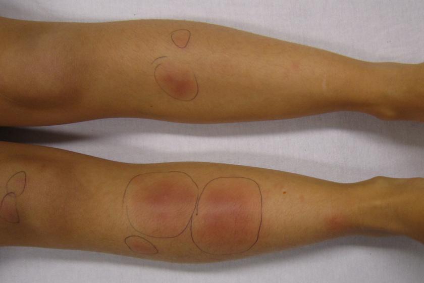Az erythema nodosum kialakulását többféle kórkép okozhatja, gyulladásos bélbetegségeket vagy egyéb betegség fellángolását is jelezheti. Legtöbbször a sípcsont körüli részen jelentkezik, de máshol is felbukkanhatnak a foltok. Ha a tünethez láz is társul, szisztémás zsírszövetgyulladásra lehet gyanakodni.