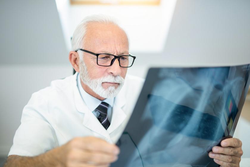 Mire számíthat az, akinél tüdőgyulladást okoz a koronavírus? A tüdőgyógyász elmondta