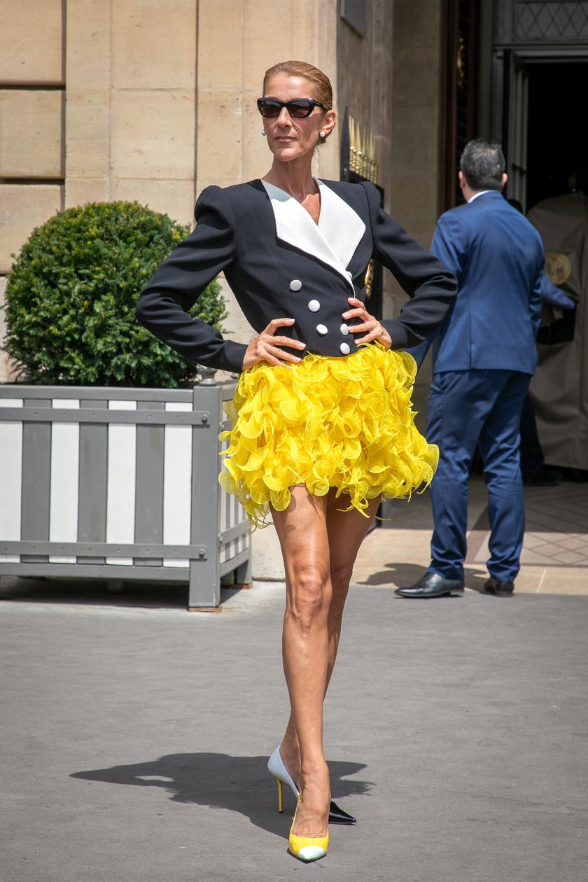 Céline Dion merész, modern és sikkes szettjeivel mindenkit elkápráztat. Ez a sárga fodros szoknya nagyon különleges összhatást kelt a fekete-fehér blézerrel.