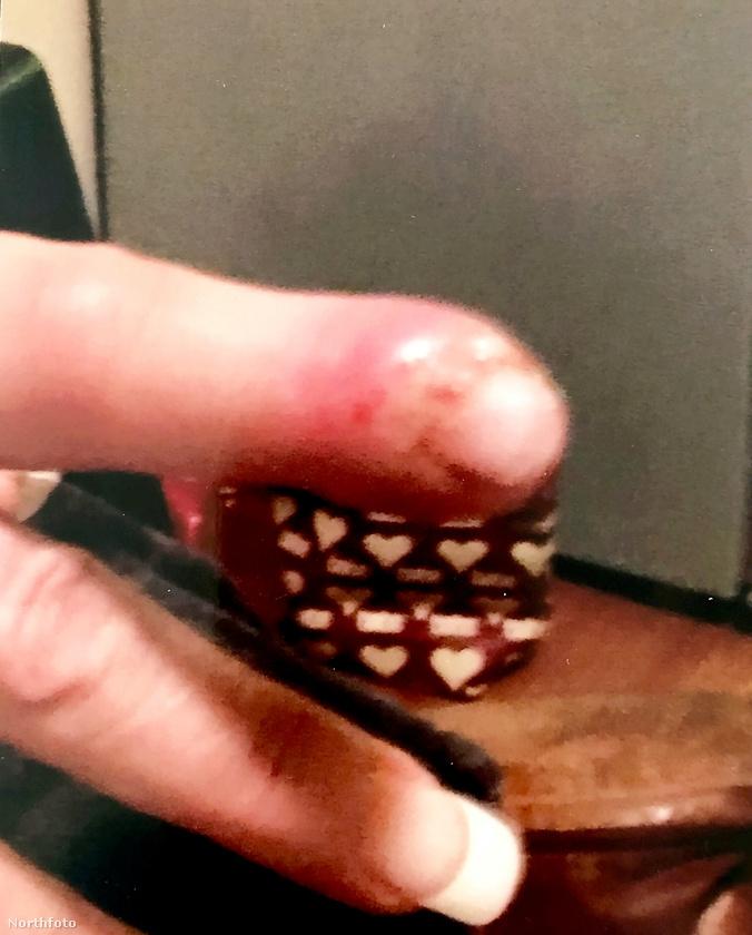 Így nézett ki ki ekkor az ujja.