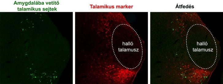 Az amygdalával kapcsolatban álló talamikus sejtek elhelyezkedése. A fotókon látható, hogy az amygdalába juttatott retrográd pályajelölő anyag (zöld) olyan sejteket jelölt meg, melyek a halló talamuszon kívül, a piros talamikus markerrel megjelölt területen helyezkedtek el