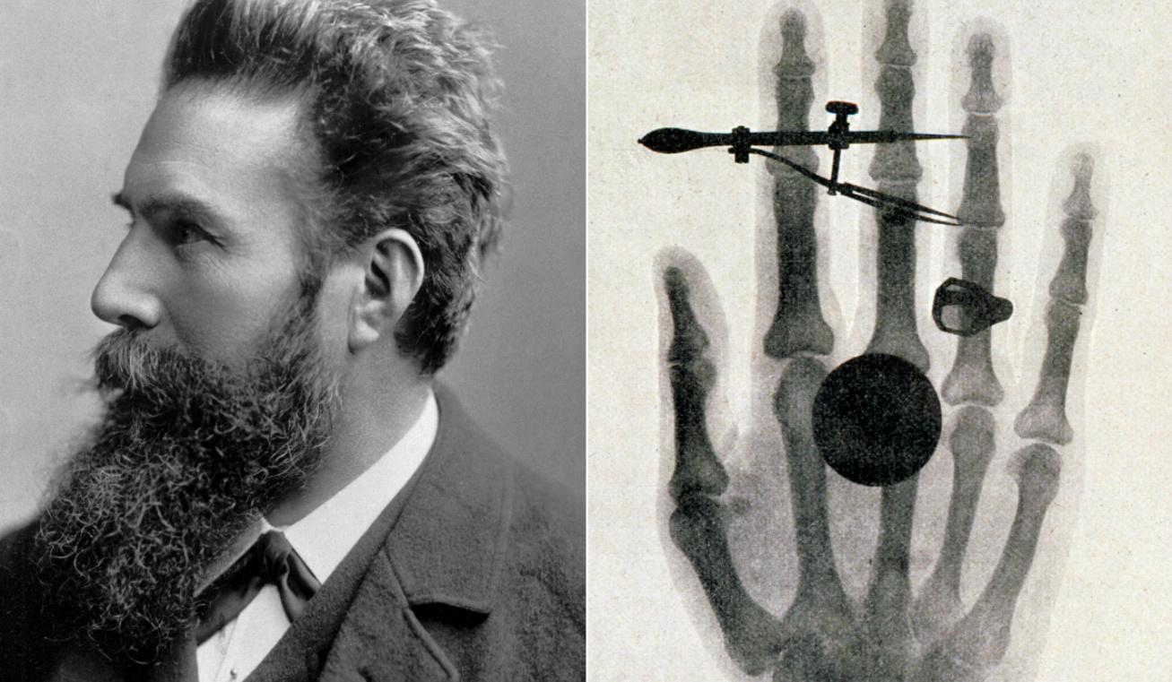 röntgen felfedezés