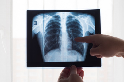 tüdő nyitó