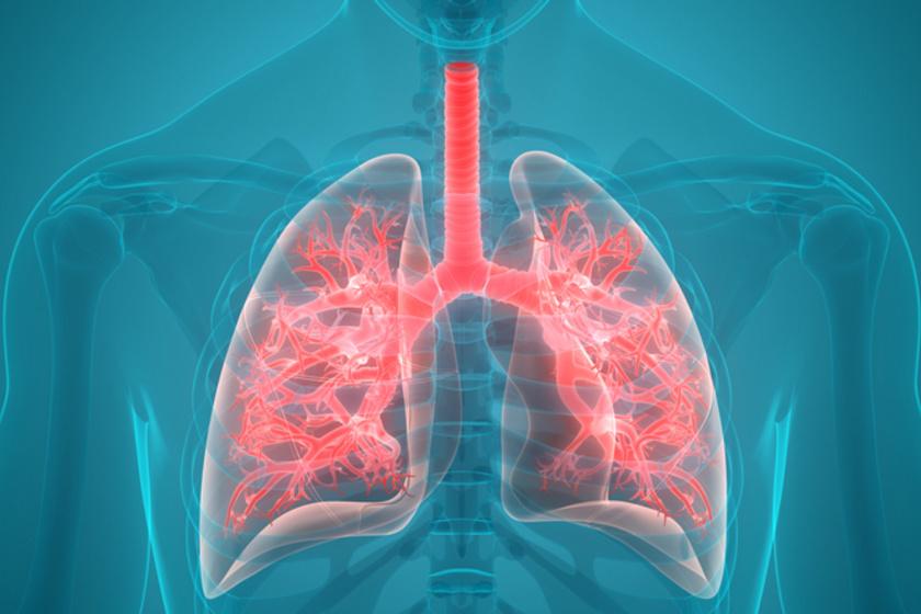 tüdő 1