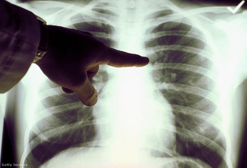 a tüdő kezelése dohányzáskor hagyja abba a dohányzást a ren tv-n