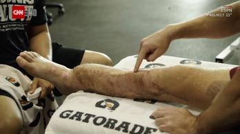 Combizmait műtötték az NFL-irányító lábszárára, hogy elkerüljék az amputációt