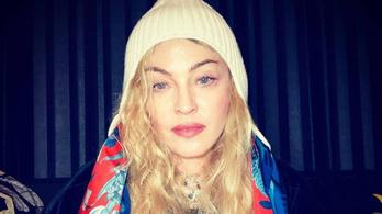 Madonna elkapta a vírust, de szerinte már rég túl van rajta