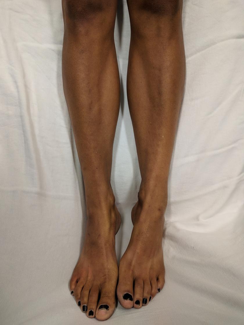 Egy fehér bőrű nő lábának elszíneződése az Addison-kór hatására.