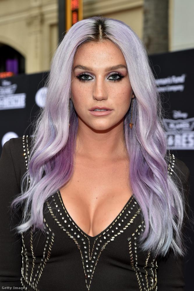 KeshaA 33 éves énekesnő is általában a szőke hajra szavazott, de azért a színes hullámokat sem vetette meg