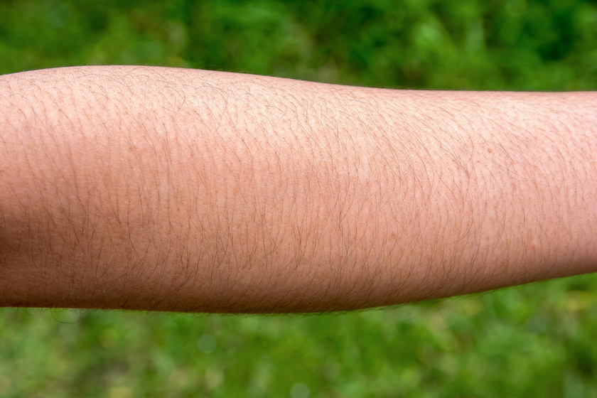szőrnövekedés3