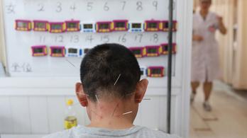 A kormány 5,9 milliárdot ad, hogy a Semmelweisen Hagyományos Kínai Orvoslás Részleg is legyen