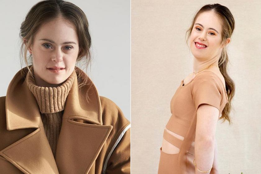 Teljesült a Down-szindrómás lány álma: soha nem adta fel, hogy modellként dolgozhasson