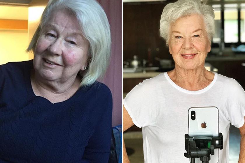 30 kilótól szabadult meg a 74 éves nagyi: előtte-utána fotókon az elképesztő eredmény