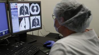 A mesterséges intelligencia lehet az egészségügy segítsége a koronavírus diagnosztizálásában