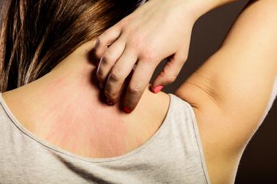 viszketes-ekcema-borbetegseg-allergia
