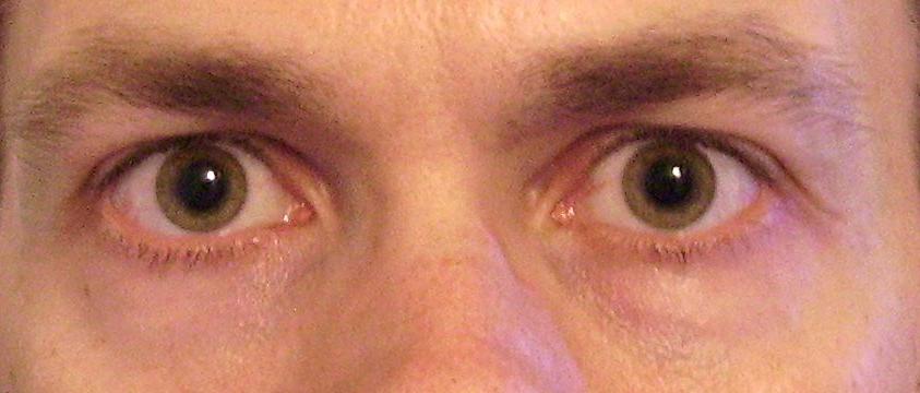 A pupilla jelzései sosem tévednek