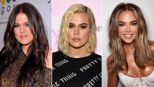 Khloe Kardashian olyat tett az arcával, hogy hátrahőkölt az internet