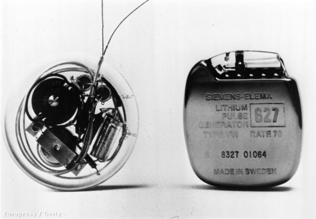 Az első beültethető pacemaker