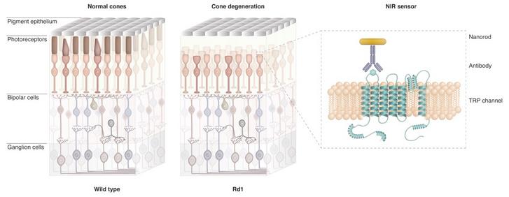 Az egészséges és a degenerált retina, illetve a beültetett fehérje és a hozzá antitest közvetítésével kapcsolt arany nanopálcika