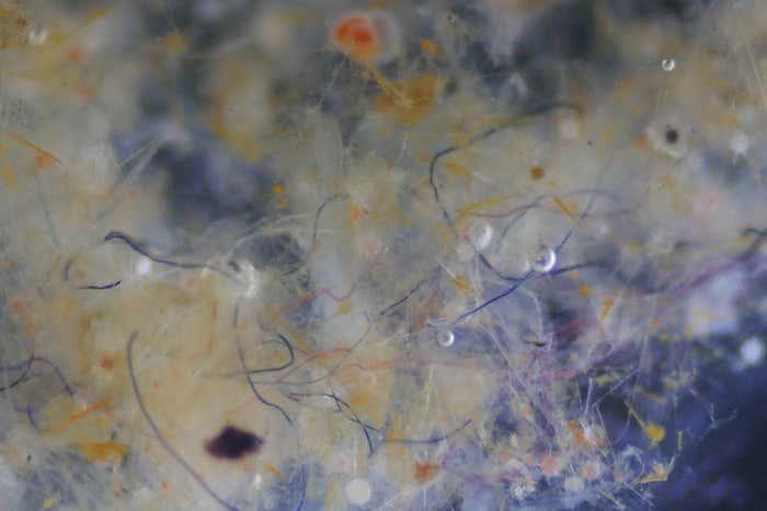 Mikrorostcsomó mikroszkópos képe