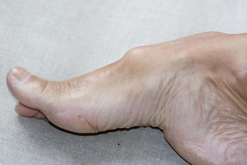 A szenzoros perifériás idegek sérülésére, Charcot–Marie–Tooth betegségre utalhat a magas lábboltozat, illetve cerebrális parézis, a központi idegrendszeri károsodása is okozhatja. Legtöbbször magas sarkú rendszeres viselése deformálja el így a lábfejet. Idővel fájdalom alakulhat ki a sarkaknál és a lábboltozatnál.