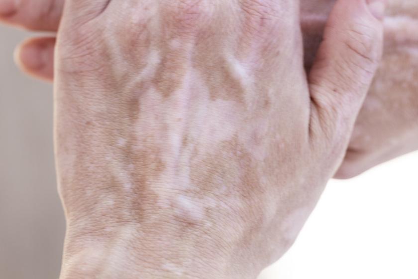 Vitiligo.