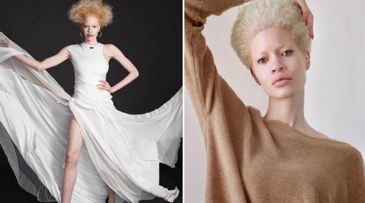albino-modell