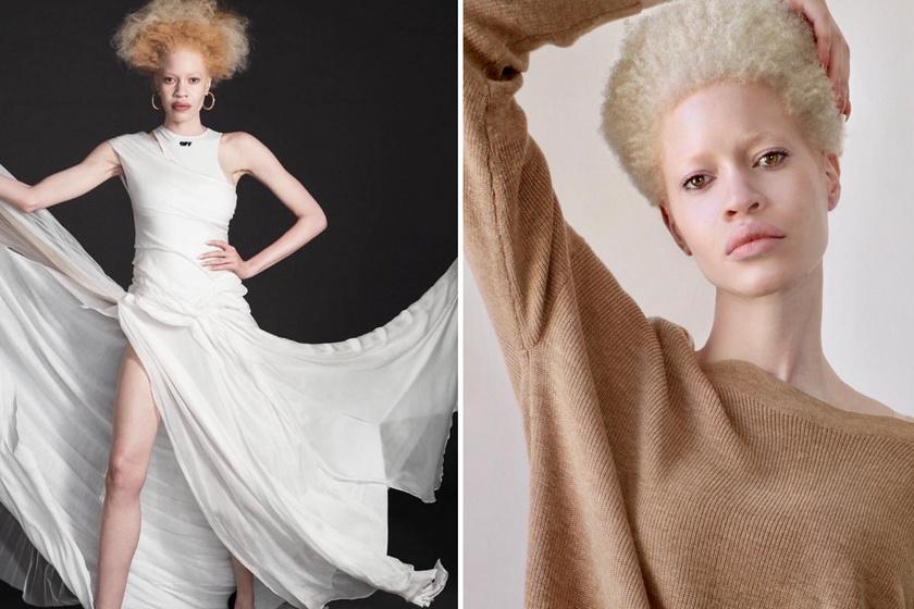 Azzal lettek sikeresek, amiért régen sokat bántották őket: 8 porcelánszépségű albínó modell, akiért rajong a divatvilág
